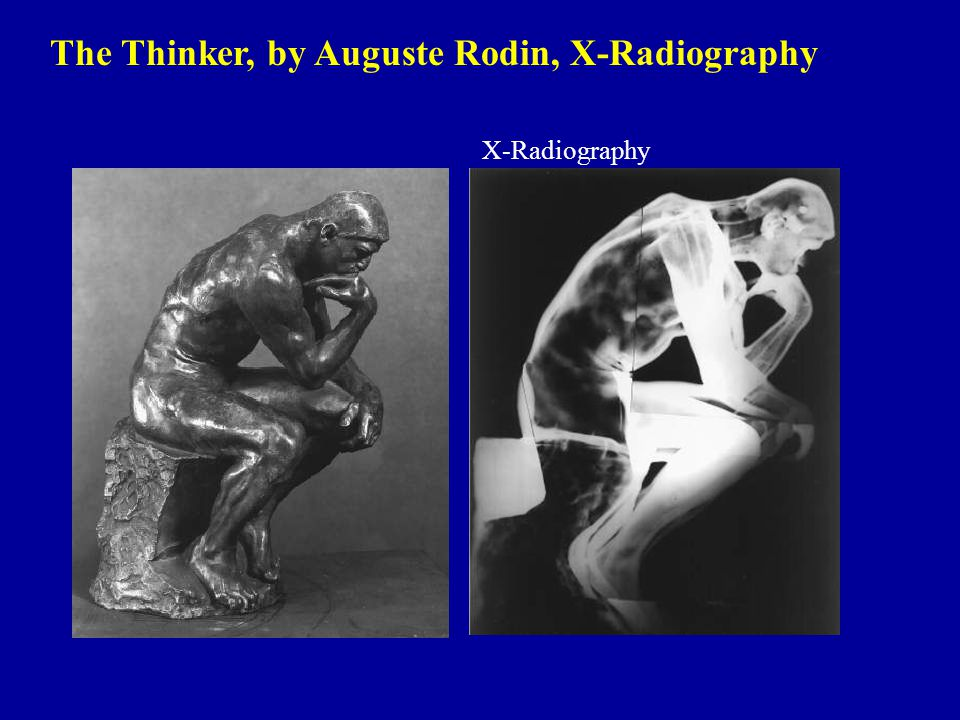 The Thinker, by Auguste Rodin, X-Radiography