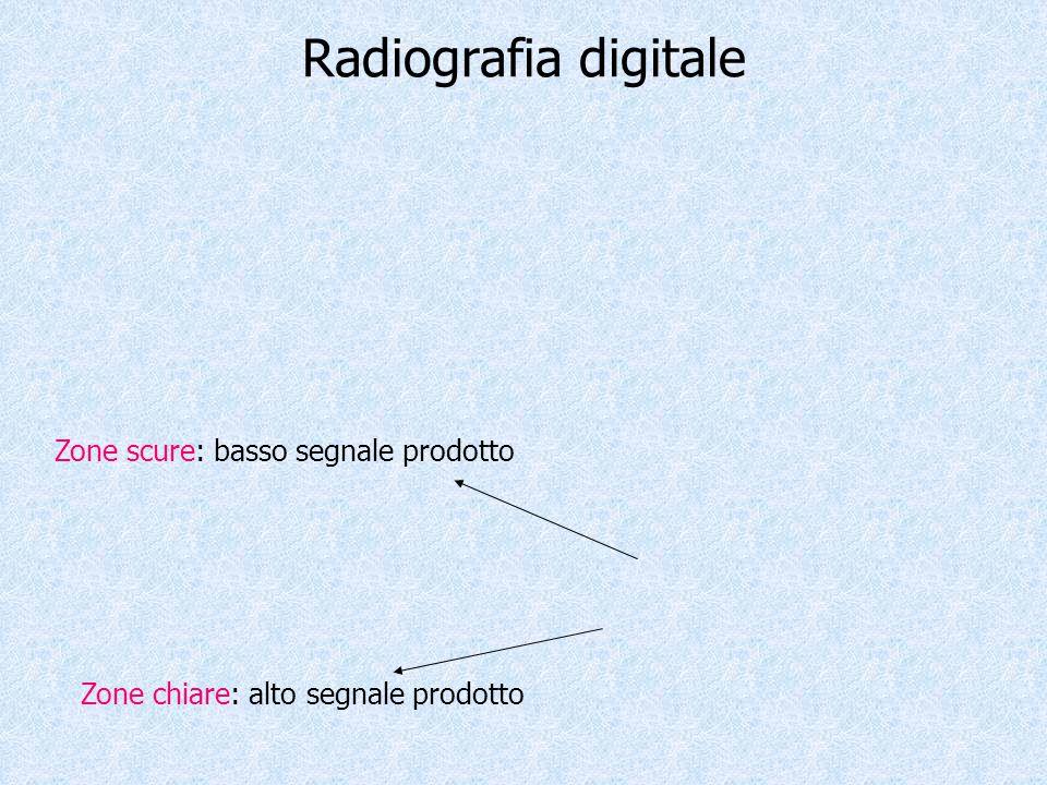 Radiografia digitale Zone scure: basso segnale prodotto