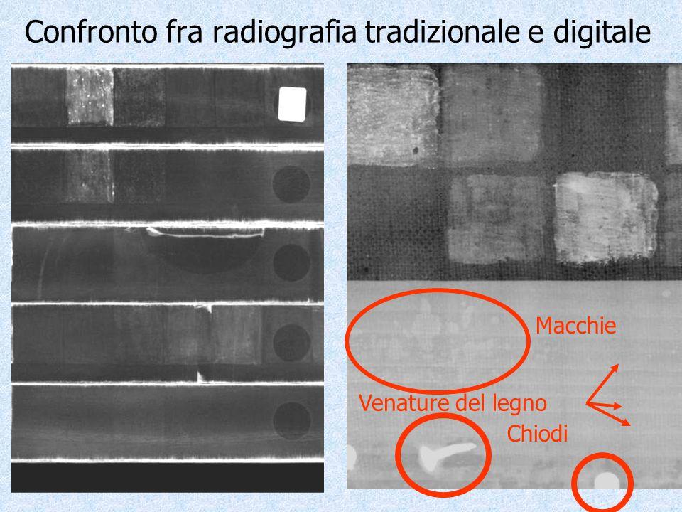 Confronto fra radiografia tradizionale e digitale