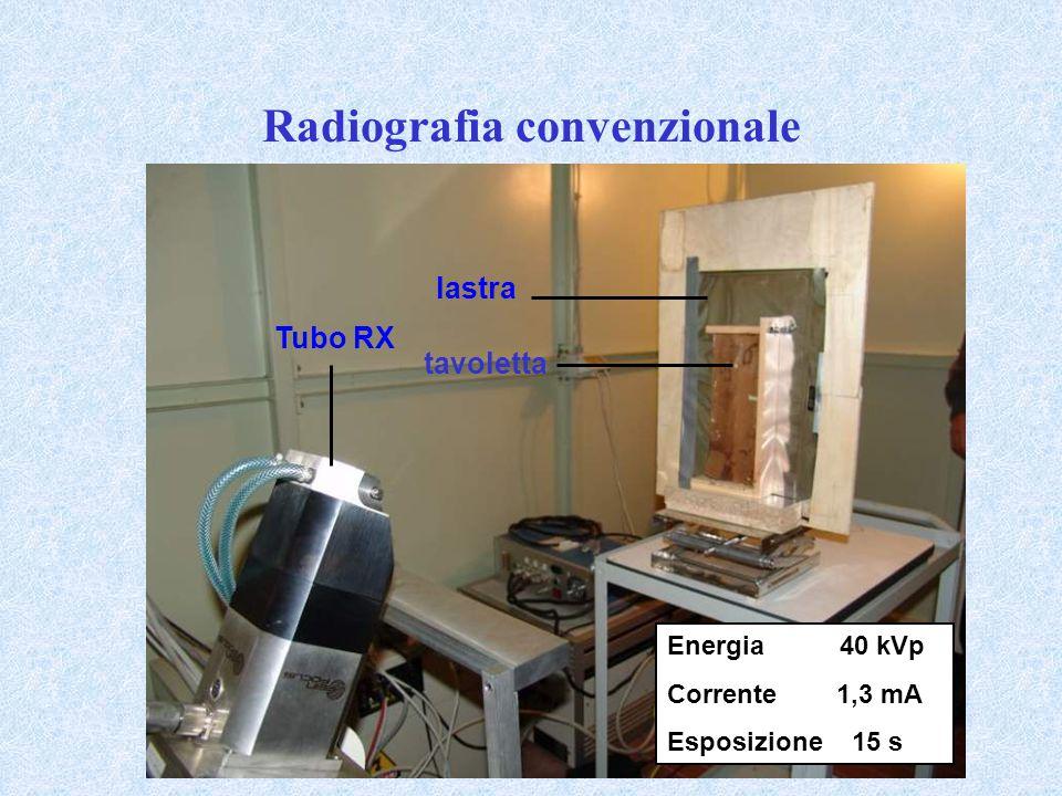 Radiografia convenzionale