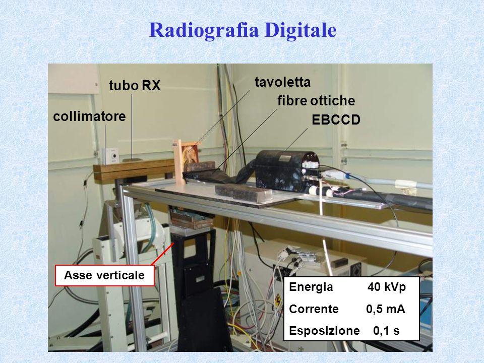 Radiografia Digitale tavoletta tubo RX fibre ottiche collimatore EBCCD