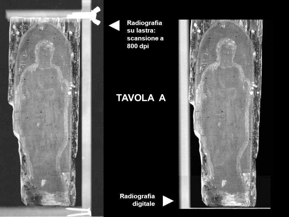 TAVOLA A Radiografia su lastra: scansione a 800 dpi