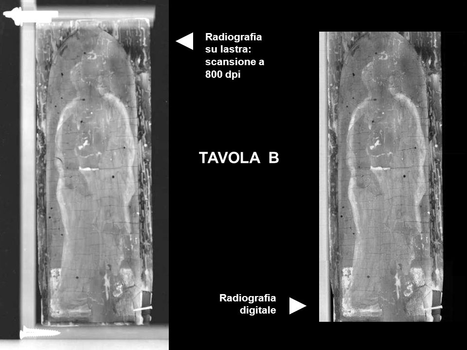TAVOLA B Radiografia su lastra: scansione a 800 dpi