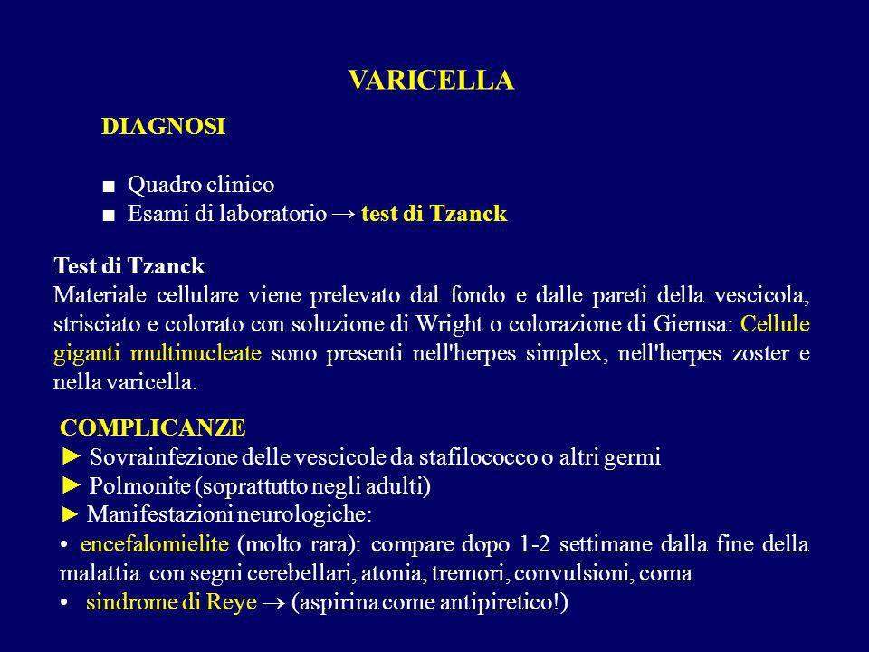 VARICELLA DIAGNOSI ■ Quadro clinico