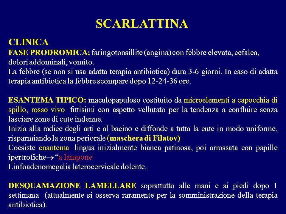 SCARLATTINA CLINICA. FASE PRODROMICA: faringotonsillite (angina) con febbre elevata, cefalea, dolori addominali, vomito.