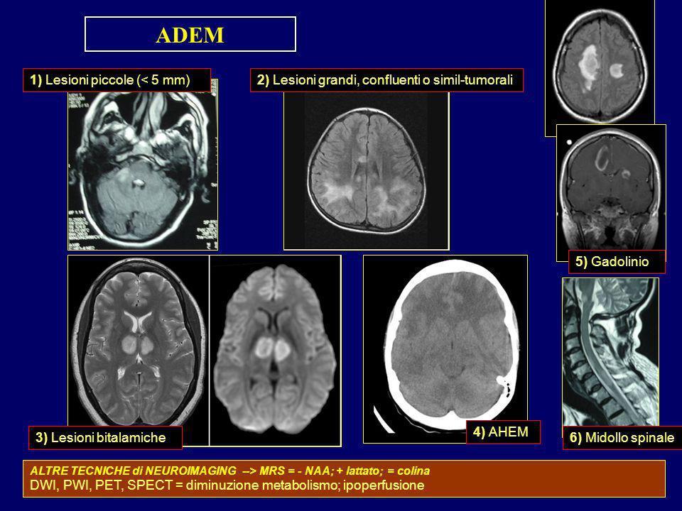 ADEM 1) Lesioni piccole (< 5 mm)
