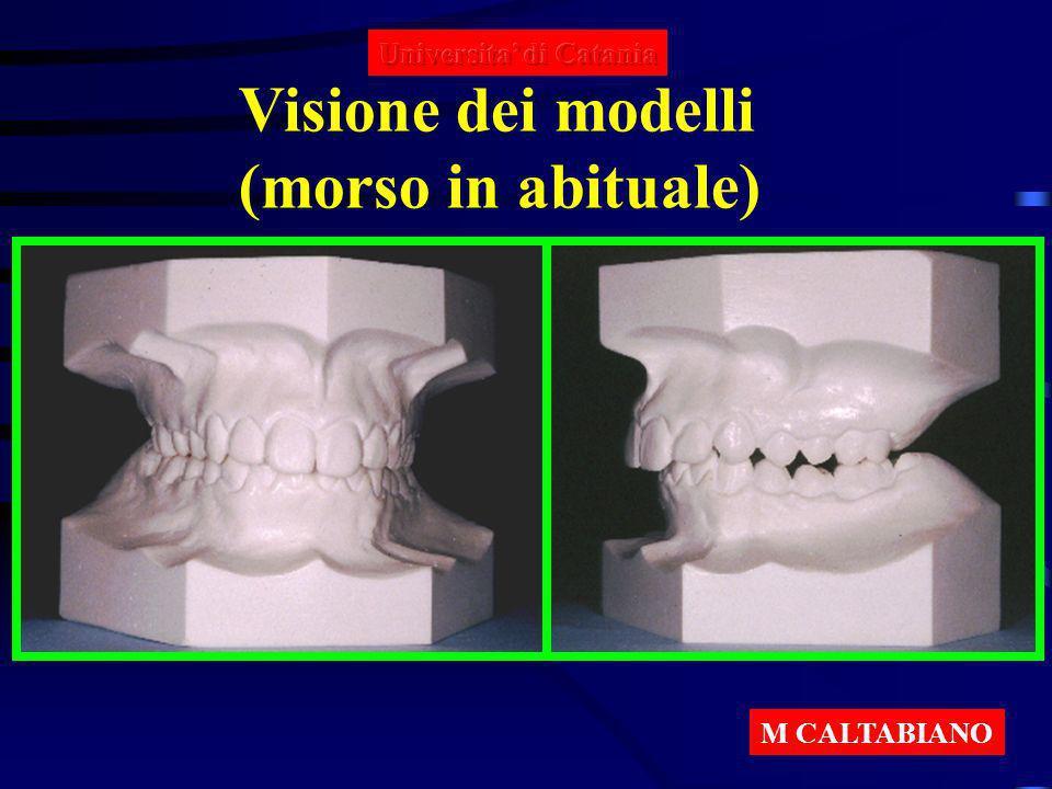 Visione dei modelli (morso in abituale) Universita' di Catania