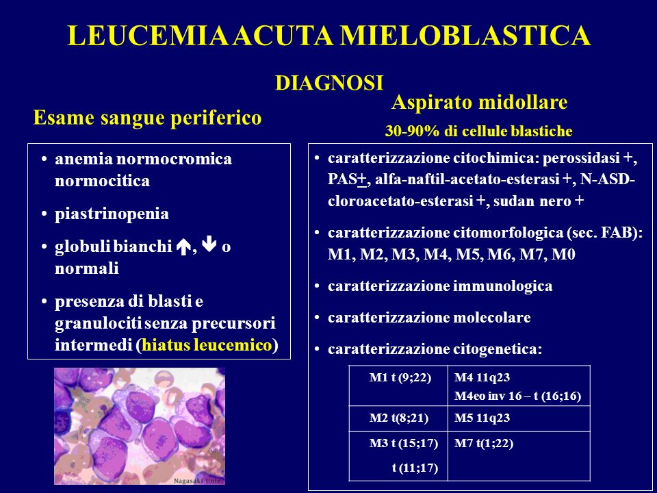 LEUCEMIA ACUTA MIELOBLASTICA 30-90% di cellule blastiche