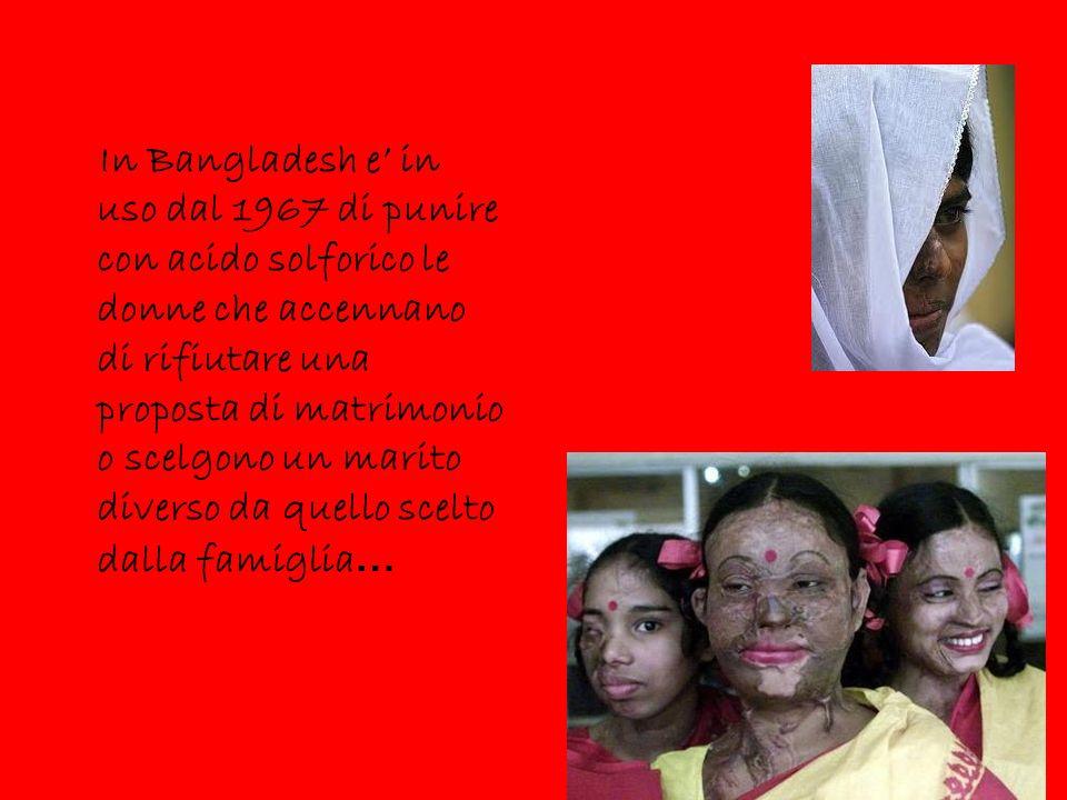 In Bangladesh e' in uso dal 1967 di punire con acido solforico le donne che accennano di rifiutare una proposta di matrimonio o scelgono un marito diverso da quello scelto dalla famiglia…