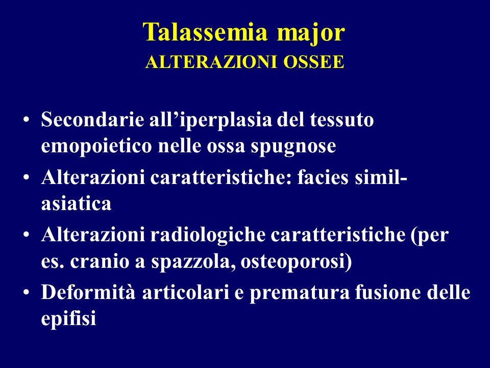 Talassemia major ALTERAZIONI OSSEE. Secondarie all'iperplasia del tessuto emopoietico nelle ossa spugnose.