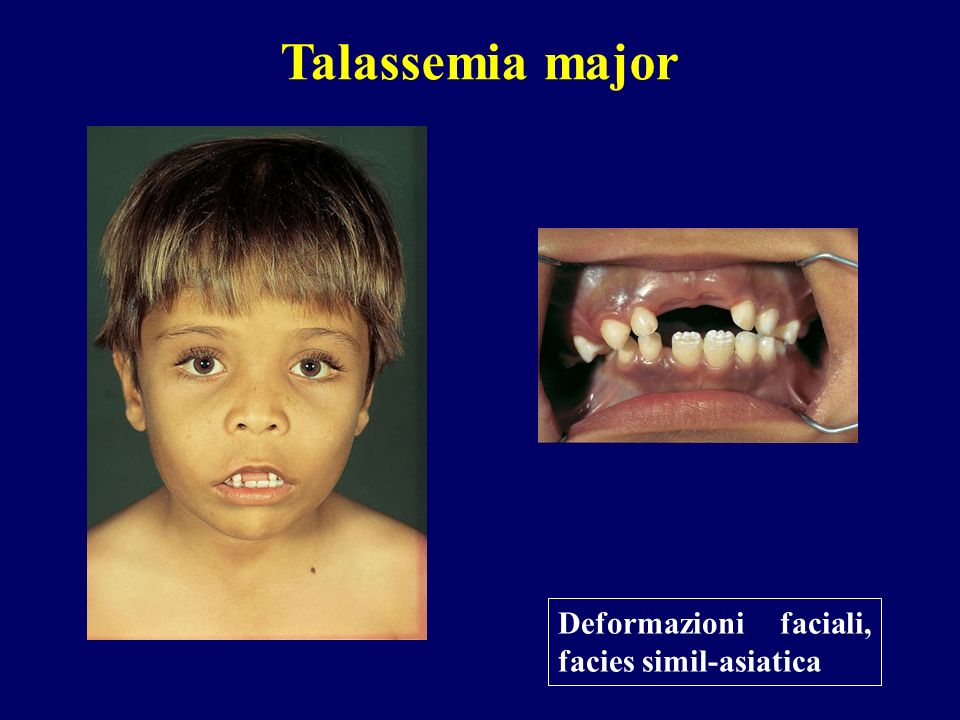 Talassemia major Deformazioni faciali, facies simil-asiatica