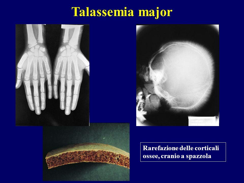 Talassemia major Rarefazione delle corticali ossee, cranio a spazzola