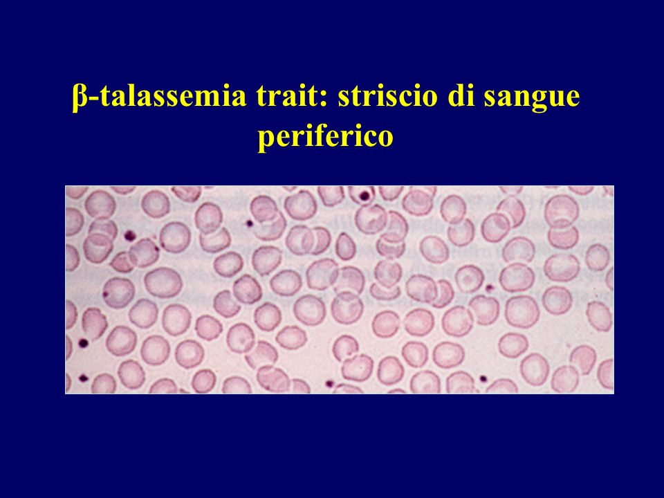 β-talassemia trait: striscio di sangue periferico