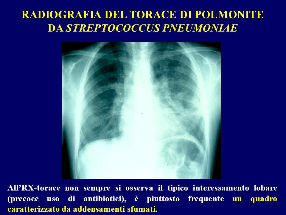 RADIOGRAFIA DEL TORACE DI POLMONITE DA STREPTOCOCCUS PNEUMONIAE