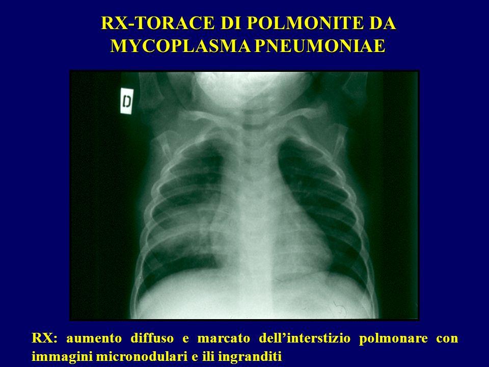 RX-TORACE DI POLMONITE DA MYCOPLASMA PNEUMONIAE
