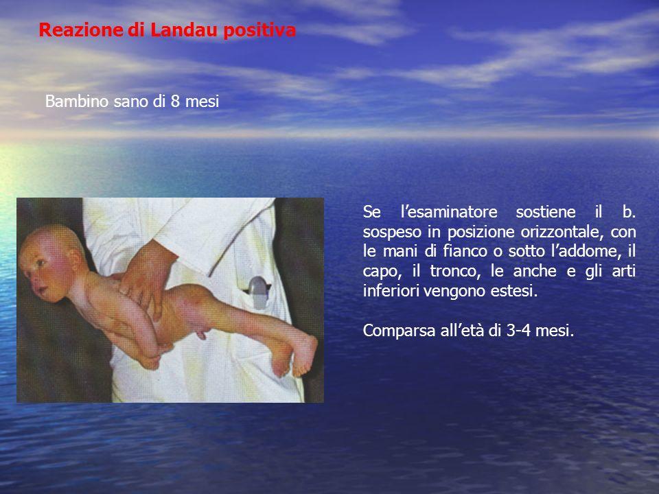 Reazione di Landau positiva