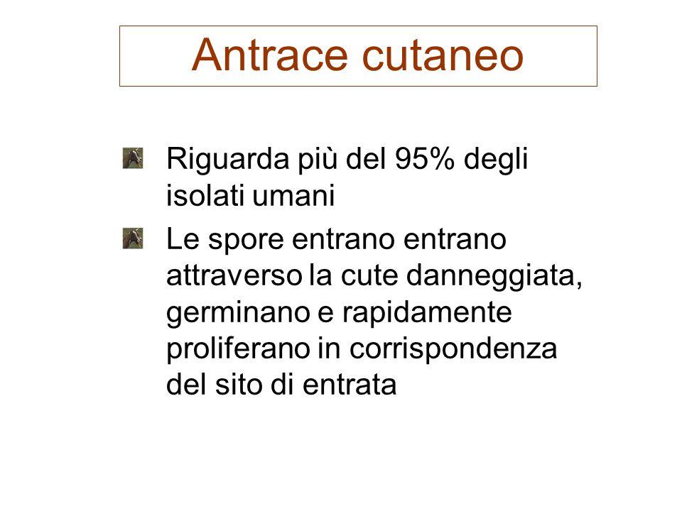 Antrace cutaneo Riguarda più del 95% degli isolati umani