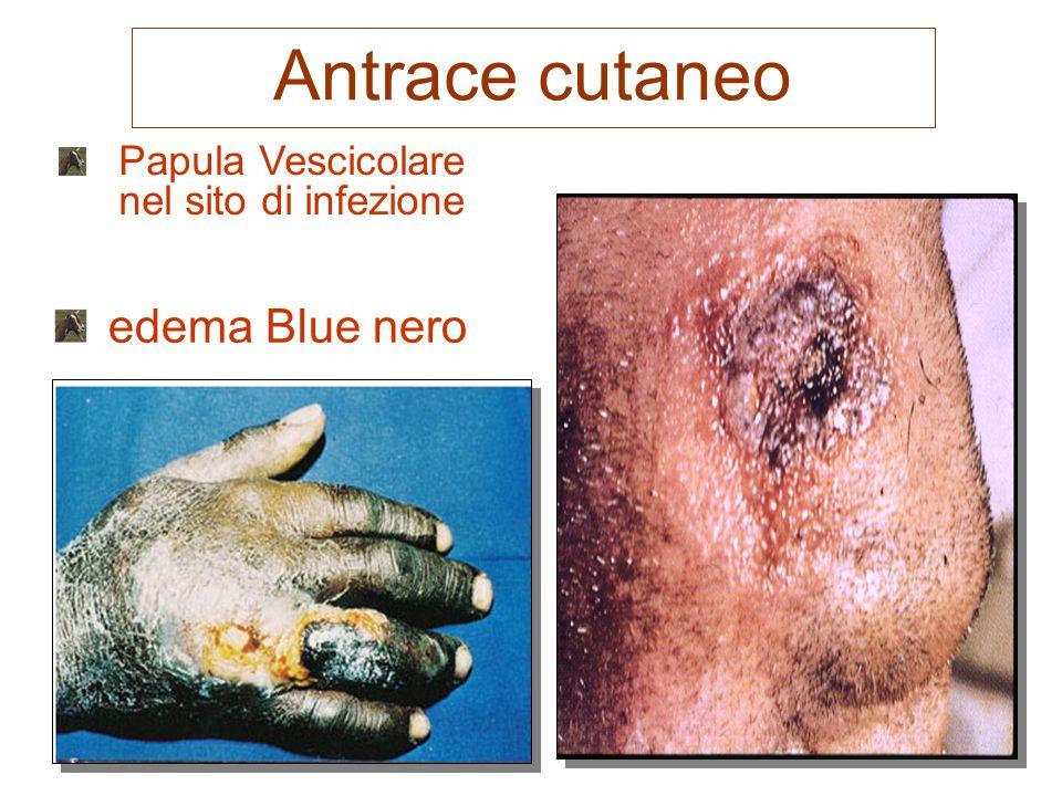 Antrace cutaneo edema Blue nero