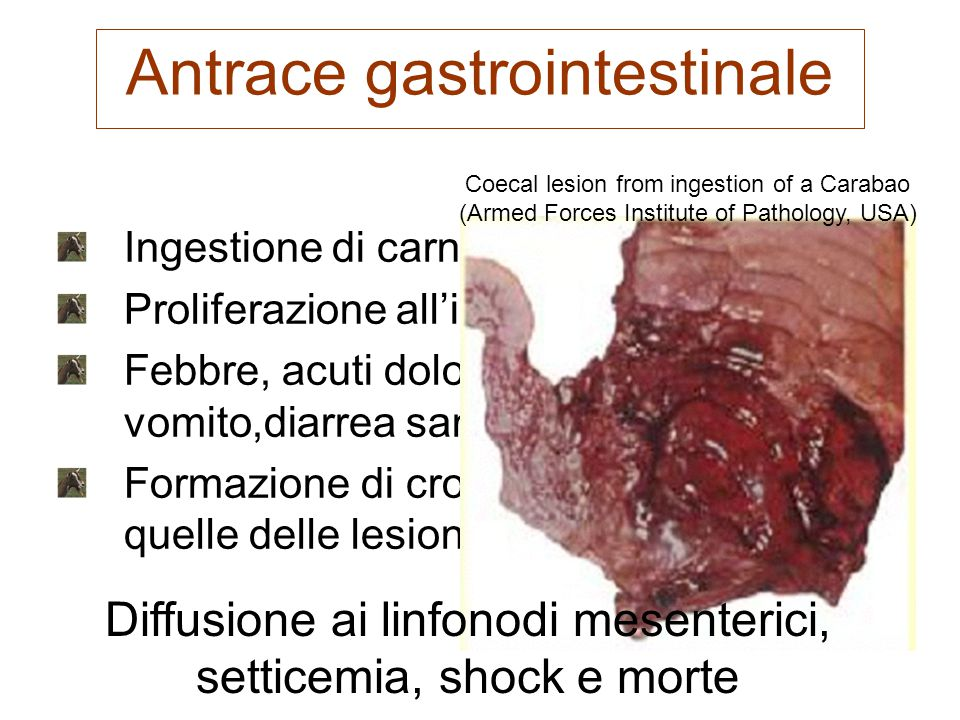 Antrace gastrointestinale