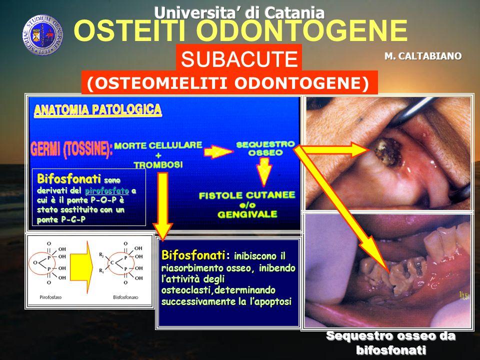 Sequestro osseo da bifosfonati