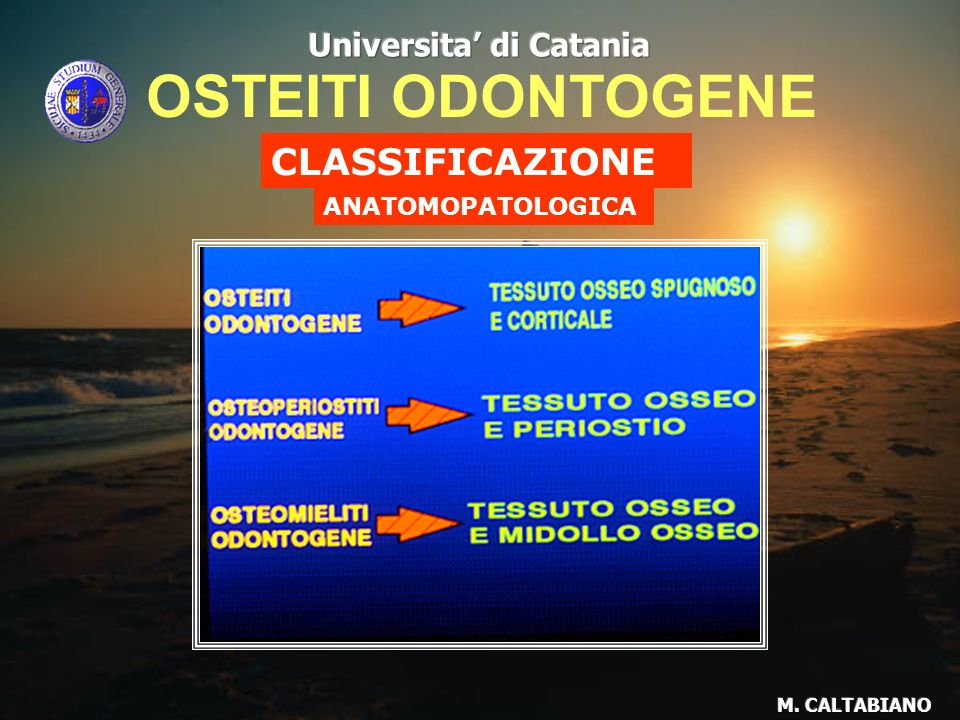 OSTEITI ODONTOGENE CLASSIFICAZIONE Universita' di Catania