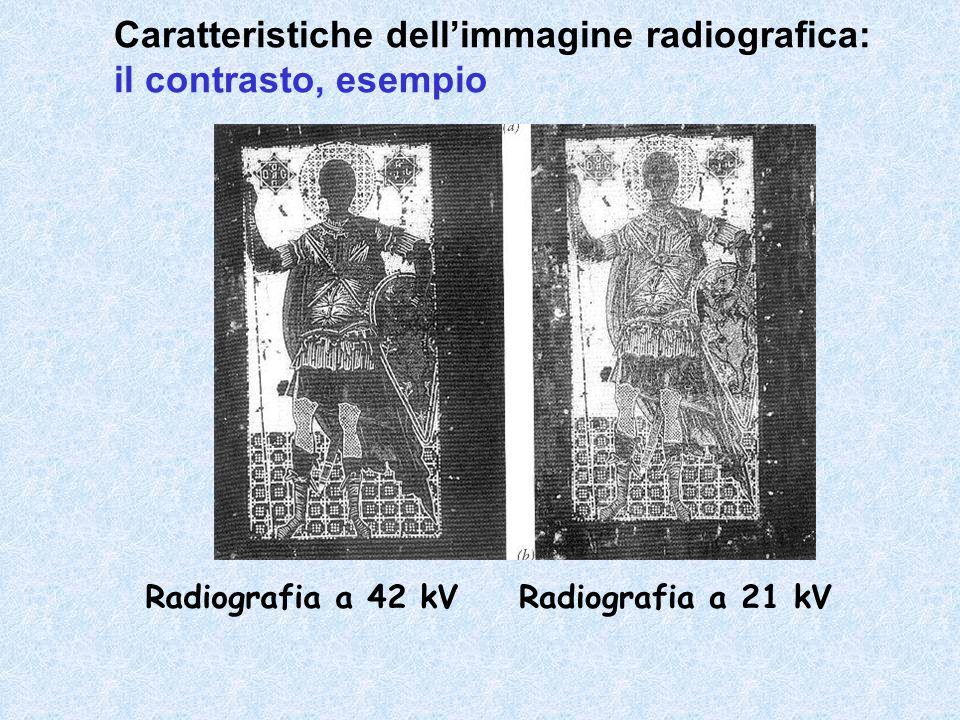 Caratteristiche dell'immagine radiografica: il contrasto, esempio
