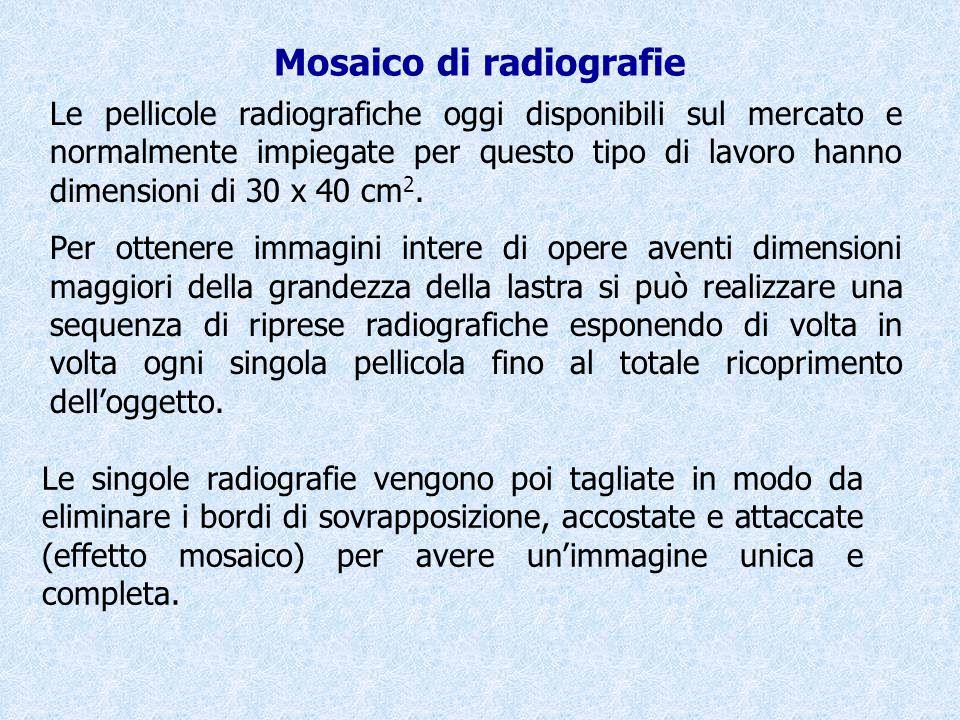 Mosaico di radiografie