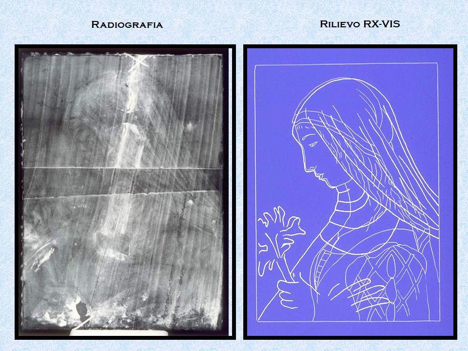 Radiografia Rilievo RX-VIS