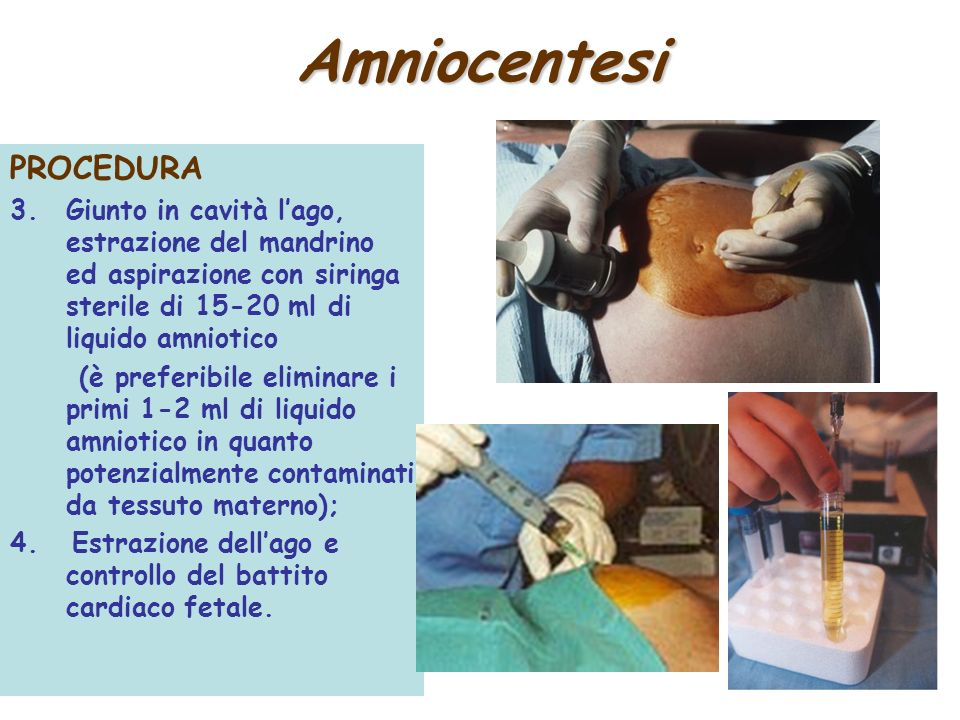 Amniocentesi PROCEDURA
