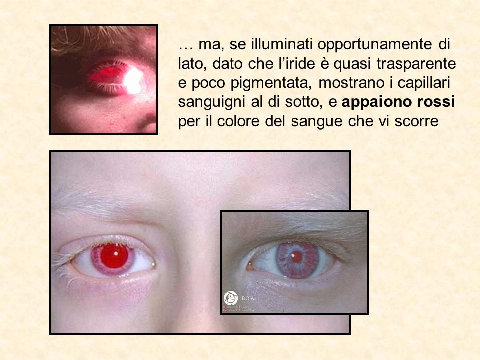 … ma, se illuminati opportunamente di lato, dato che l'iride è quasi trasparente e poco pigmentata, mostrano i capillari sanguigni al di sotto, e appaiono rossi per il colore del sangue che vi scorre