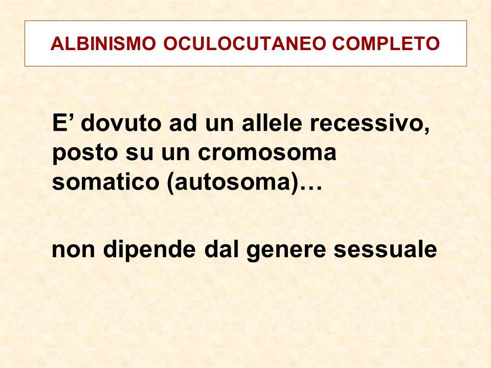 ALBINISMO OCULOCUTANEO COMPLETO