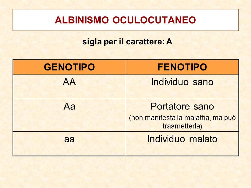 ALBINISMO OCULOCUTANEO