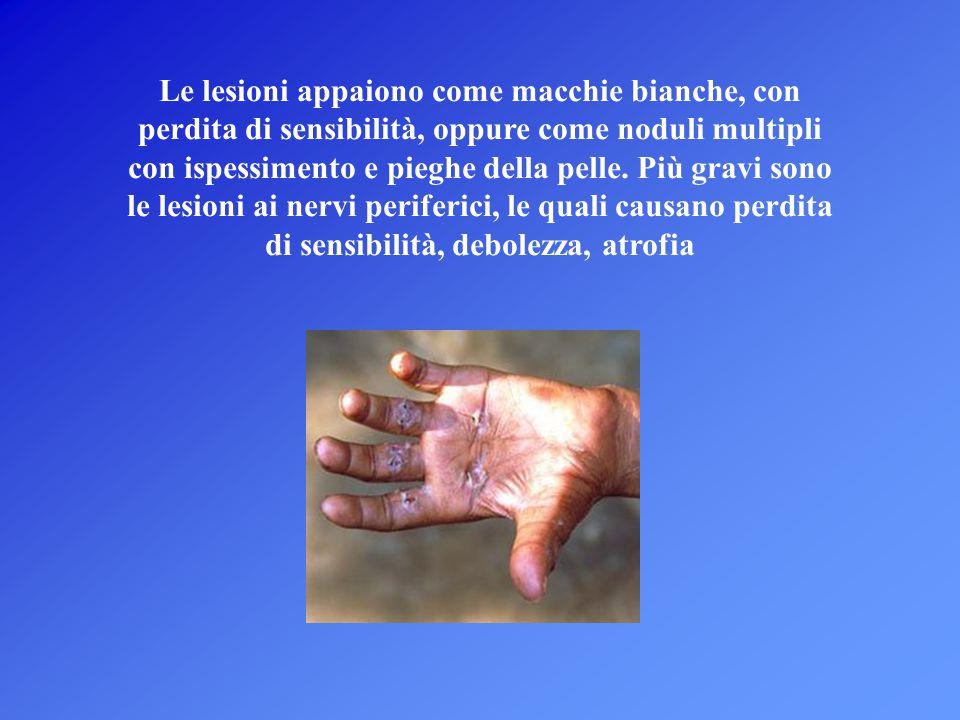 Le lesioni appaiono come macchie bianche, con perdita di sensibilità, oppure come noduli multipli con ispessimento e pieghe della pelle.