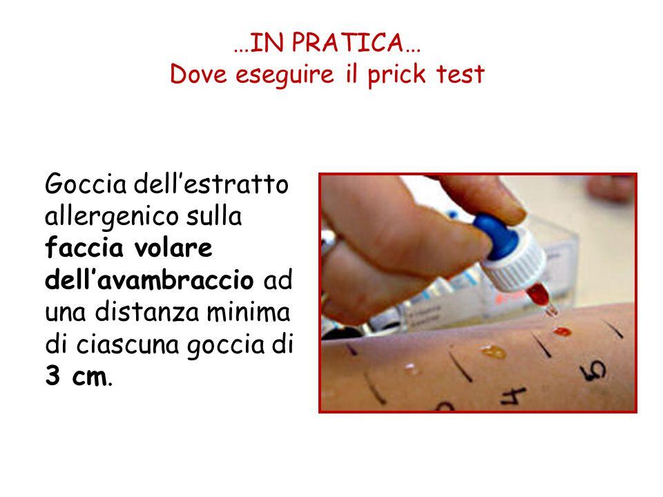 …IN PRATICA… Dove eseguire il prick test
