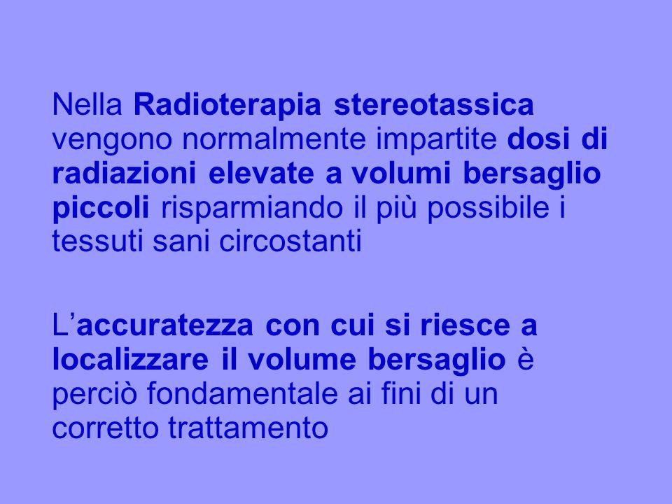 Nella Radioterapia stereotassica vengono normalmente impartite dosi di radiazioni elevate a volumi bersaglio piccoli risparmiando il più possibile i tessuti sani circostanti