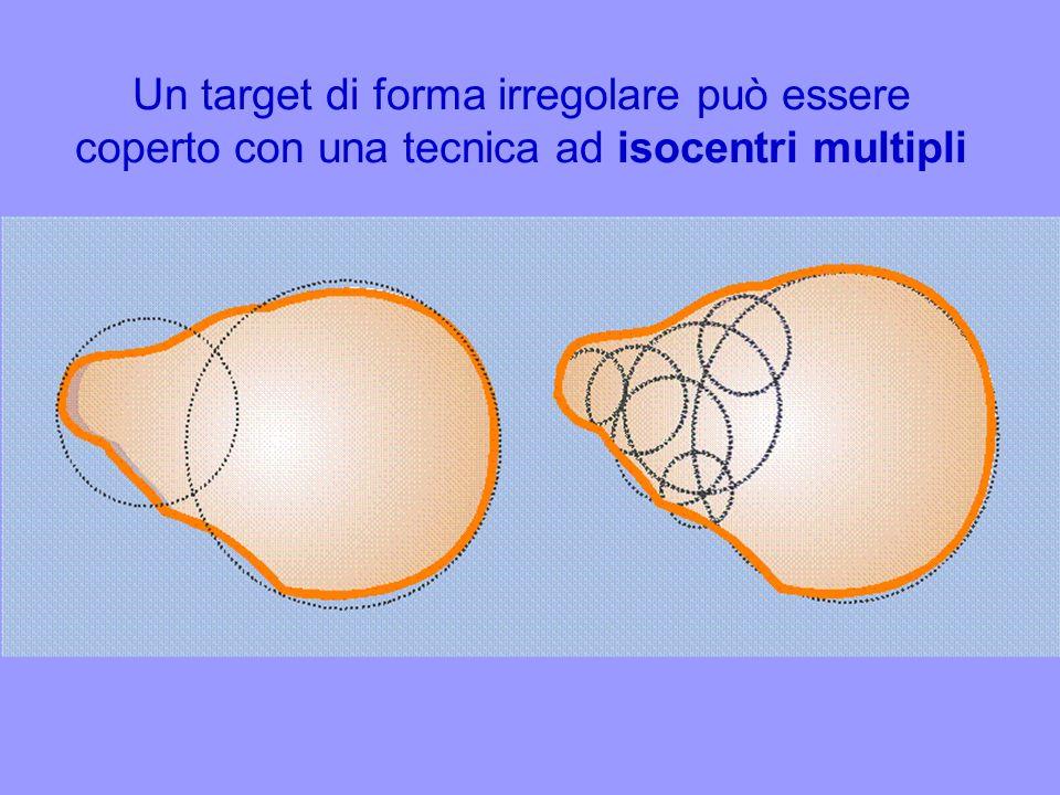 Un target di forma irregolare può essere coperto con una tecnica ad isocentri multipli