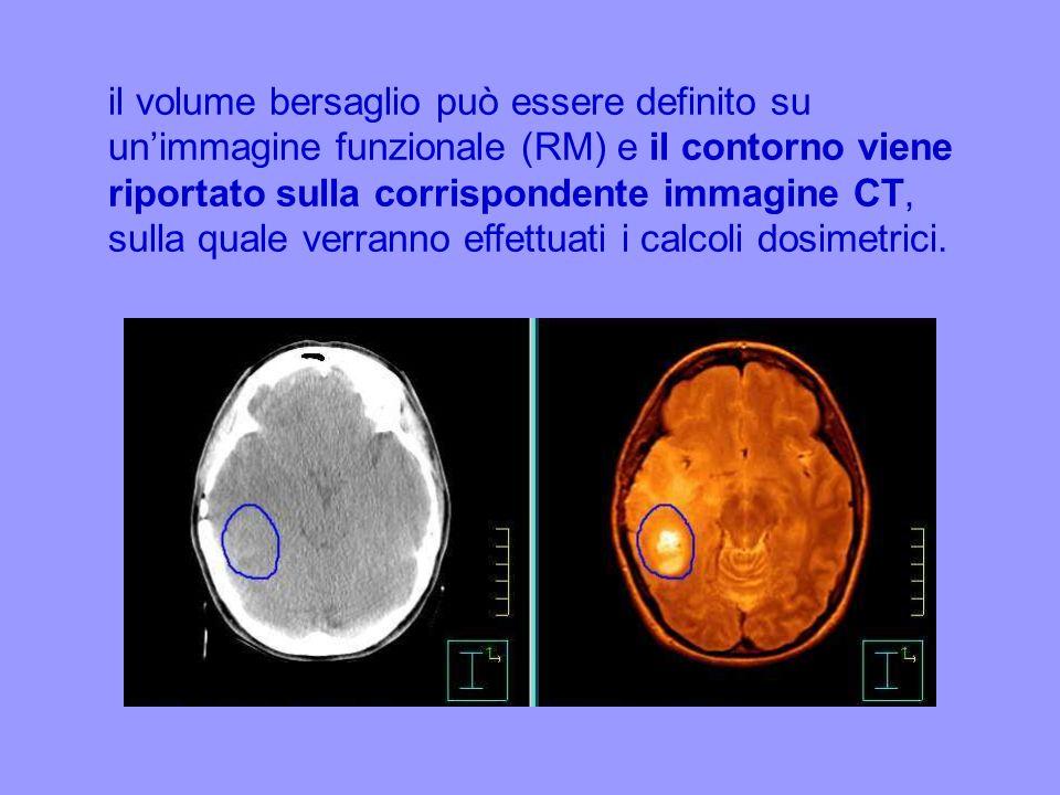 il volume bersaglio può essere definito su un'immagine funzionale (RM) e il contorno viene riportato sulla corrispondente immagine CT, sulla quale verranno effettuati i calcoli dosimetrici.