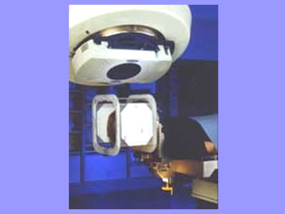 Printed films from the BrainSCAN workstation are mounted onto the BrainLAB Target Positioner box for wall laser alignment. Once secured to the couch mount, the patient is positioned with the BrainLAB Target Positioner mounted to the Radionics Head Ring or Relocatable Frame (Fig. 5).