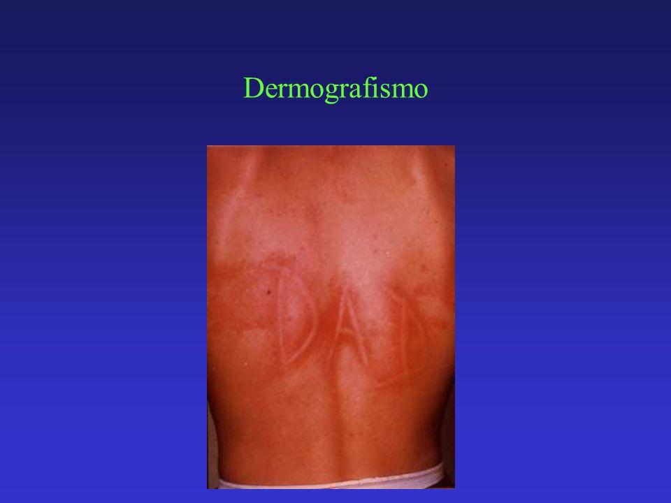 Dermografismo