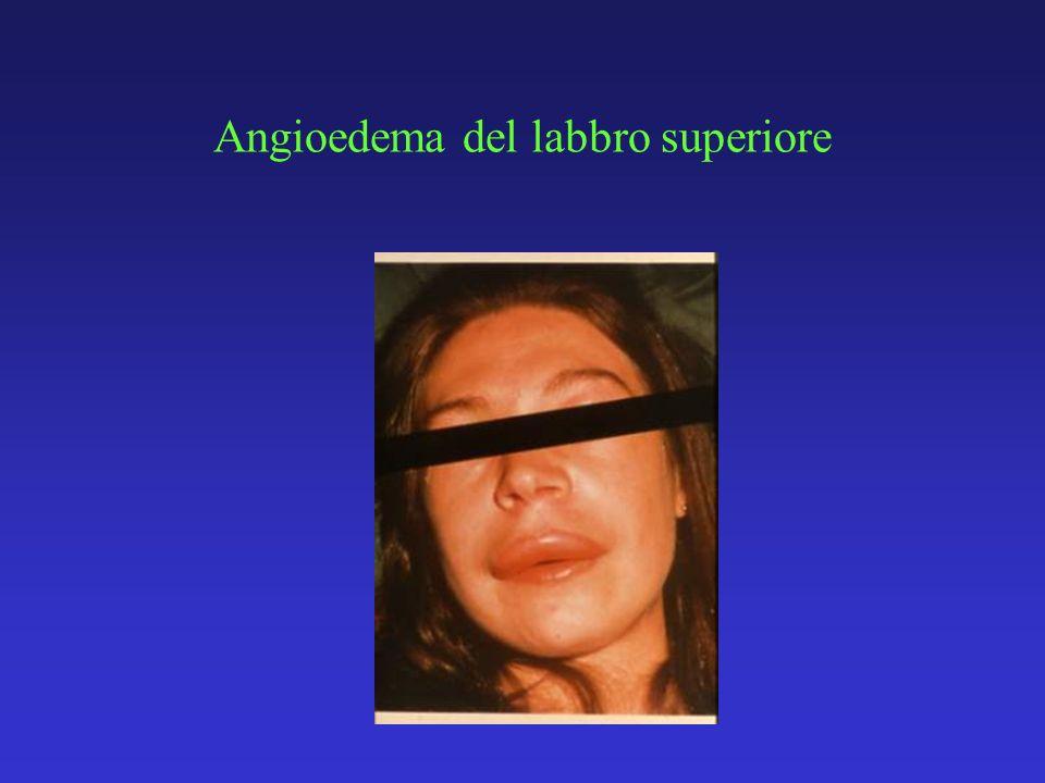 Angioedema del labbro superiore
