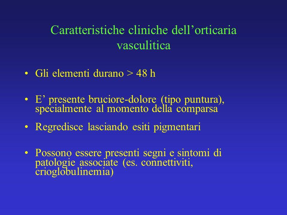 Caratteristiche cliniche dell'orticaria vasculitica