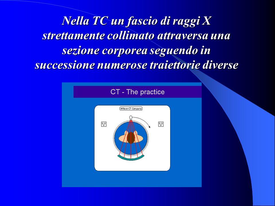 Nella TC un fascio di raggi X strettamente collimato attraversa una sezione corporea seguendo in successione numerose traiettorie diverse