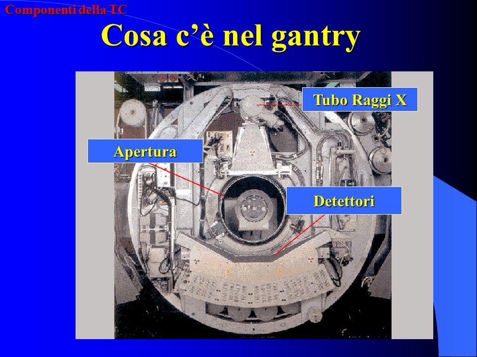 Cosa c'è nel gantry Tubo Raggi X Apertura Detettori