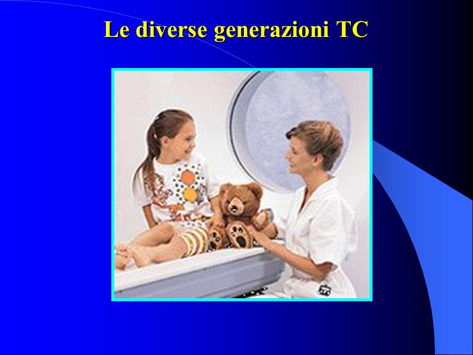 Le diverse generazioni TC