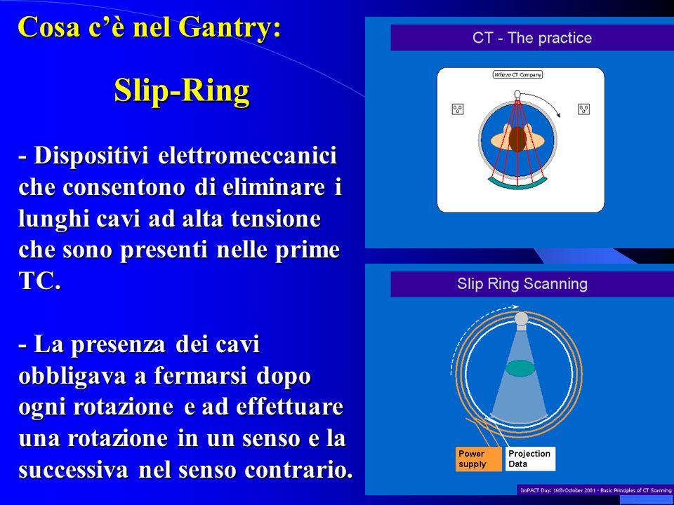Slip-Ring Cosa c'è nel Gantry: