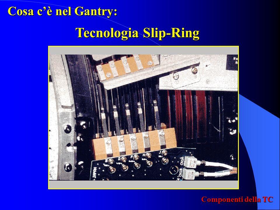 Cosa c'è nel Gantry: Tecnologia Slip-Ring Componenti della TC