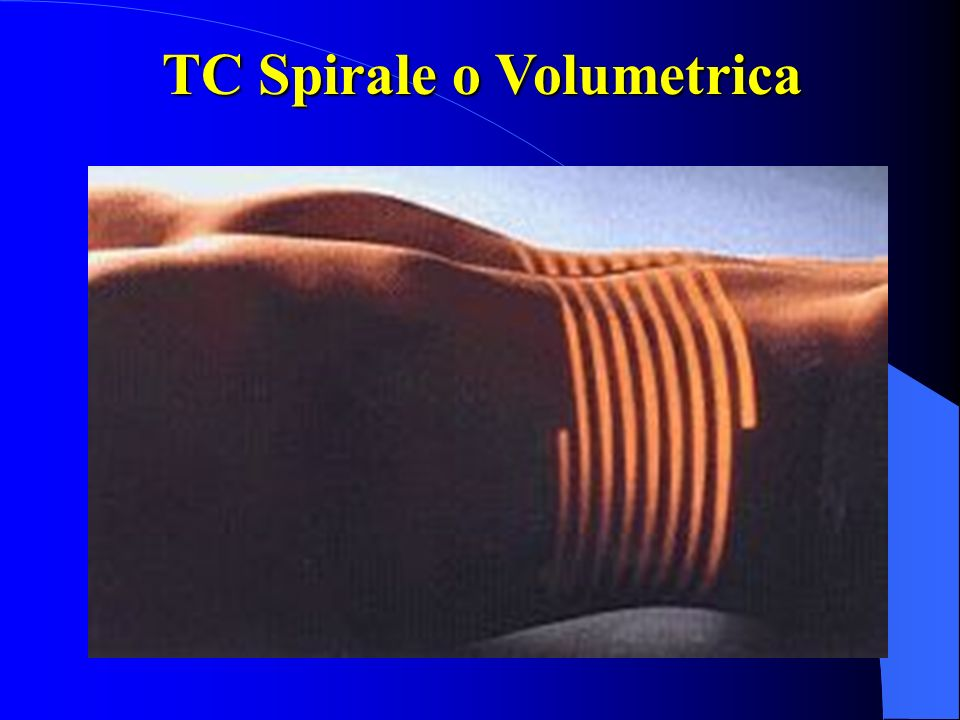 TC Spirale o Volumetrica