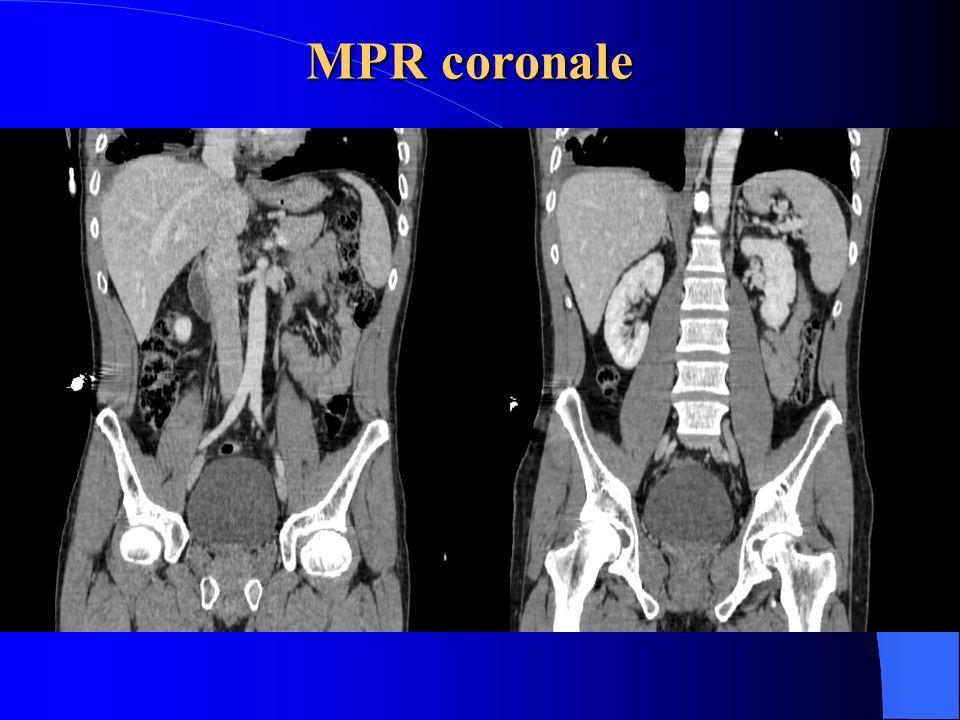 MPR coronale