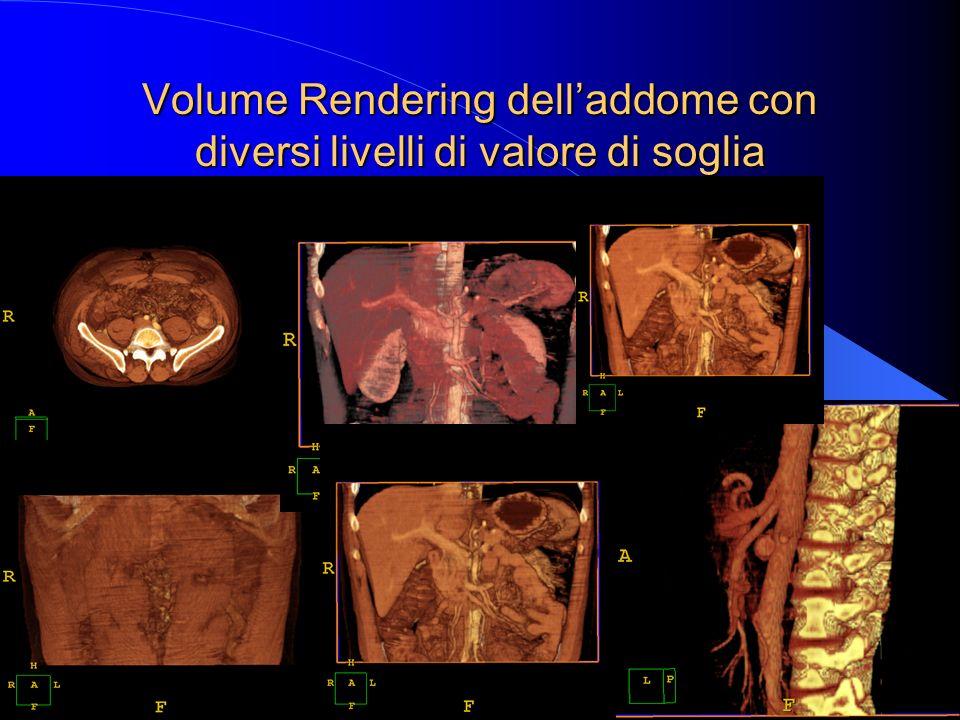 Volume Rendering dell'addome con diversi livelli di valore di soglia