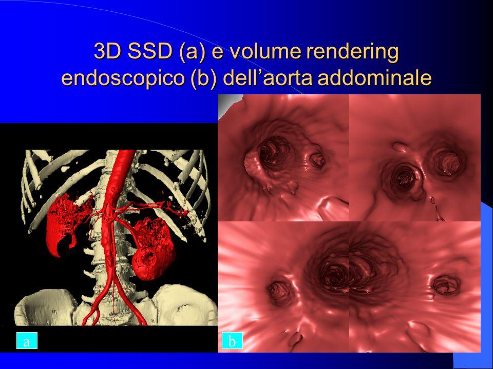 3D SSD (a) e volume rendering endoscopico (b) dell'aorta addominale